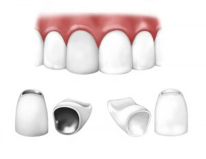 Dental Crowns in Lomita, CA